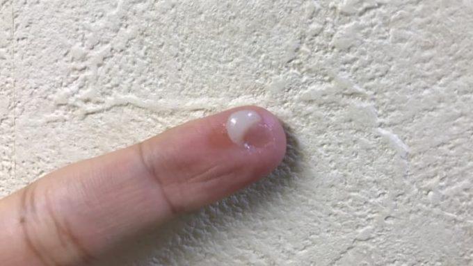 オルテクサー口腔用軟膏の中身を手に取ったところ